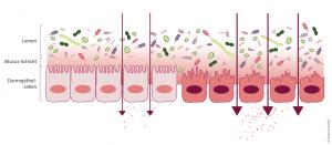 Bei einer erhöhten Durchlässigkeit des Darms können vermehrt SChadstoffe und bakterielle Toxine in den Organismus eindringen.