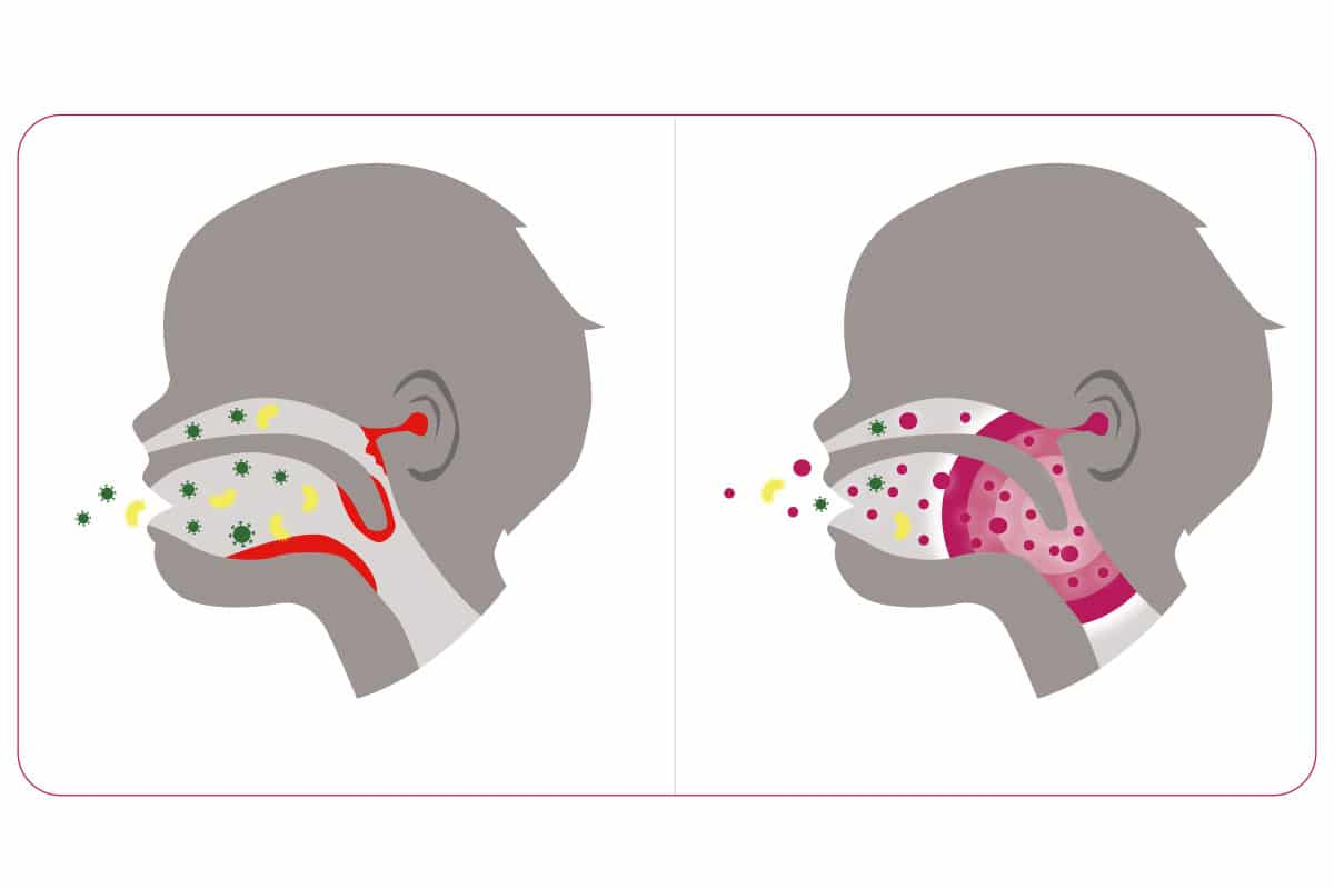HNO-Infekte durch Ungleichgewicht im Mundmikrobiom
